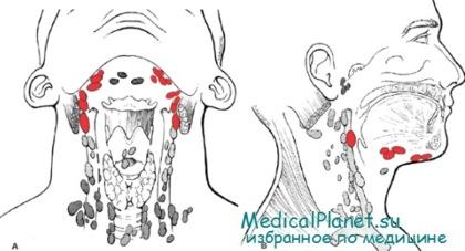 Климаксе у женщин симптомы и лечение