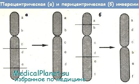 Инверсии хромосом