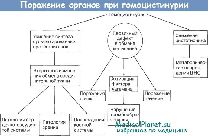 Поражение органов при гомоцистинурии