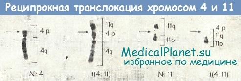 Реципрокная транслокация хромосом