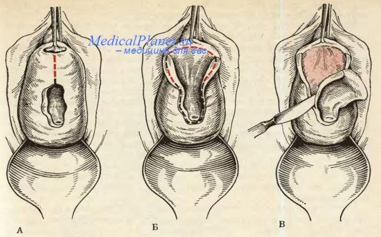 poslerodovoy-vaginalniy-svish