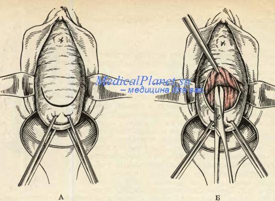 Удаление полипов матки. Полипэктомия.