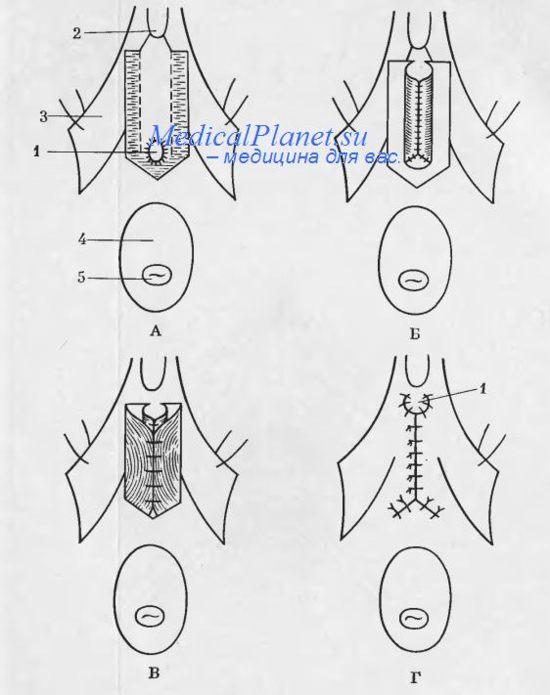 Операция перегиба уретры (схема).  А - линия разреза и отсепароеки слизистой оболочки вульвы; 1 - наружное отверстие...