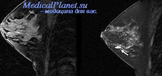 Маммография при раке молочной железы