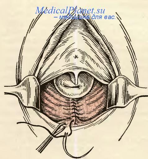 язвы от сальпинографита во влагалище-цф3