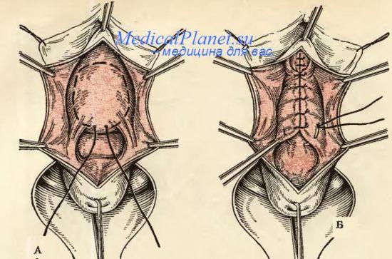 Видео клиники Мон Блан об операциях процедурах и пр
