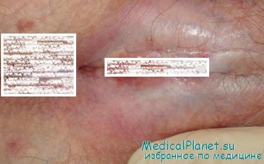 Медицина кожные заболевания-половых органов циркулирующие термостаты