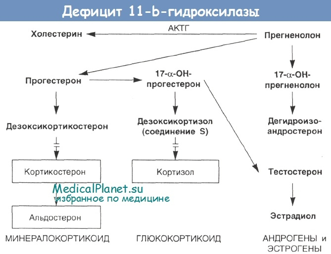 Дефицит 11-бета-гидроксилазы