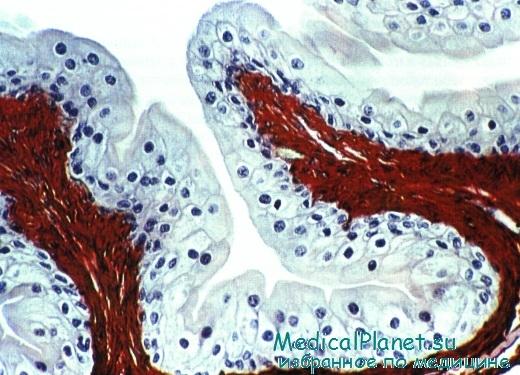 гистология эпителия наполненного мочевого пузыря