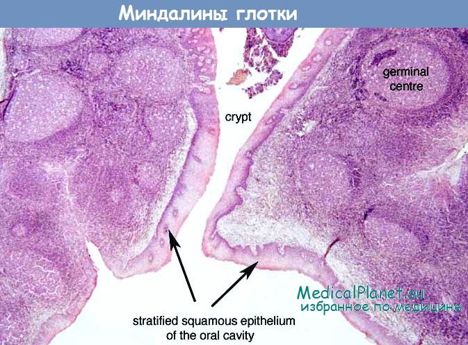 Гистология миндалин глотки
