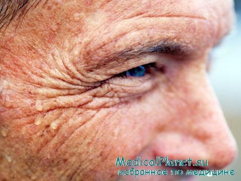 differentsialnaya-diagnostika-gipertonicheskoy-bolezni-i-feohromotsitomi