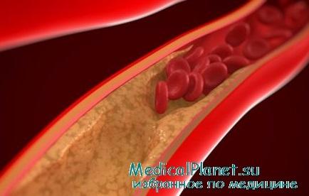 Что помогает от холестерина в организме