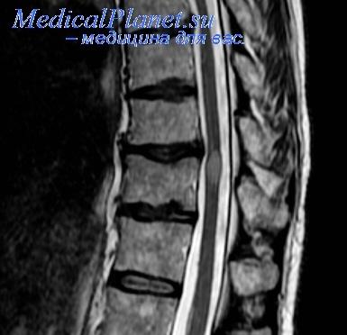 МРТ при инфаркте спинного мозга из-за тромбоза задней спинальной артерии