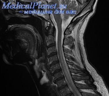МРТ при инфаркте спинного мозга