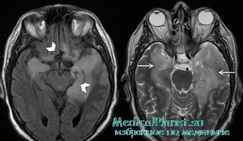 подострый склерозирующий панэнцефалит
