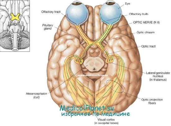 Неврит зрительного нерва у детей: диагностика, лечение
