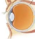 поражения глазных нервов
