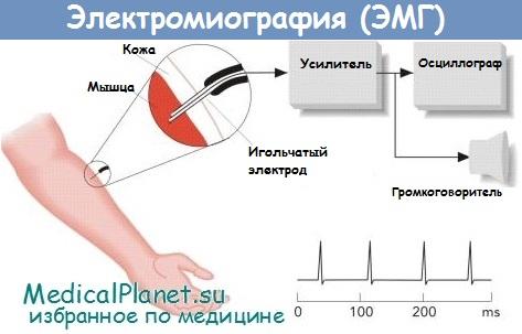 Схема электромиографии
