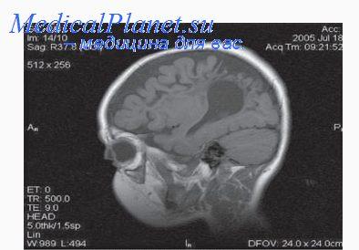 способности атрофия головного мозга у детей Виды термобелья2 Натуральные