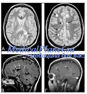 МРТ при кортикобазальной дегенерации
