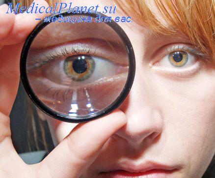 Отек диска зрительного нерва. Нарушение движений глаз.