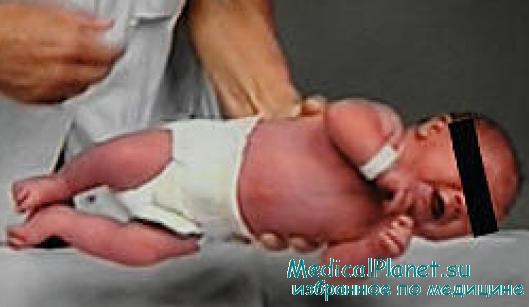 синдром ригидного младенца
