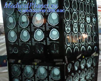 терапия эпилепсии