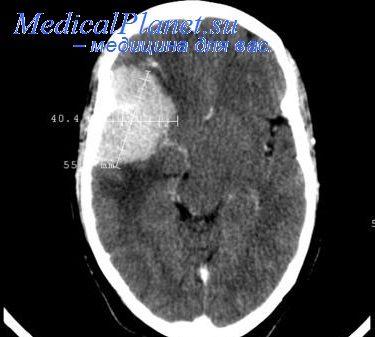КТ головы при внутримозговом кровоизлиянии