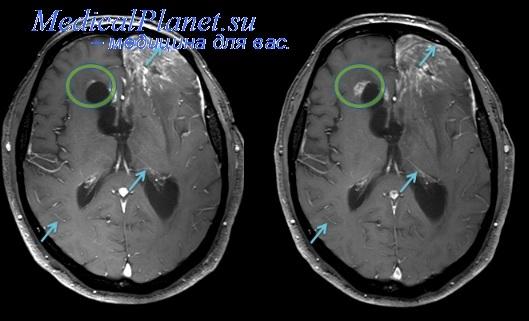 МРТ при артерио-венозной мальформации