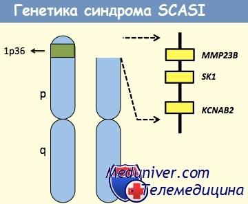 Генетика синдрома SCASI также связанного с участком 1p36 хромосомы