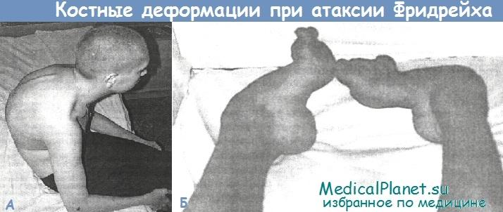 Костные деформации при атаксии Фридрейха