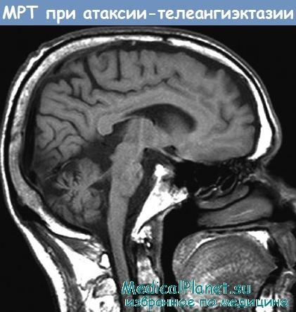 МРТ при атаксии-телеангиэктазии