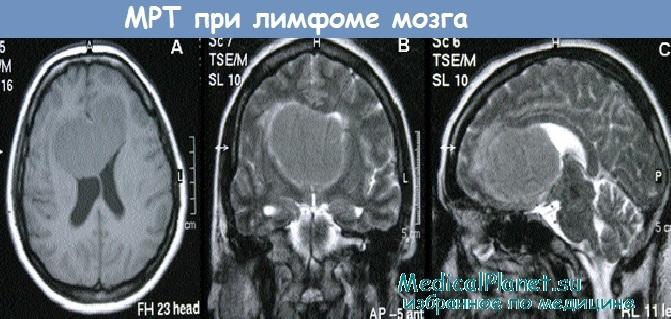 МРТ при лимфоме мозга