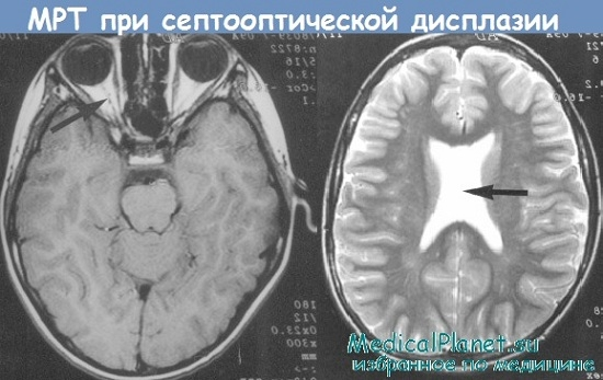 МРТ при септооптической дисплазии