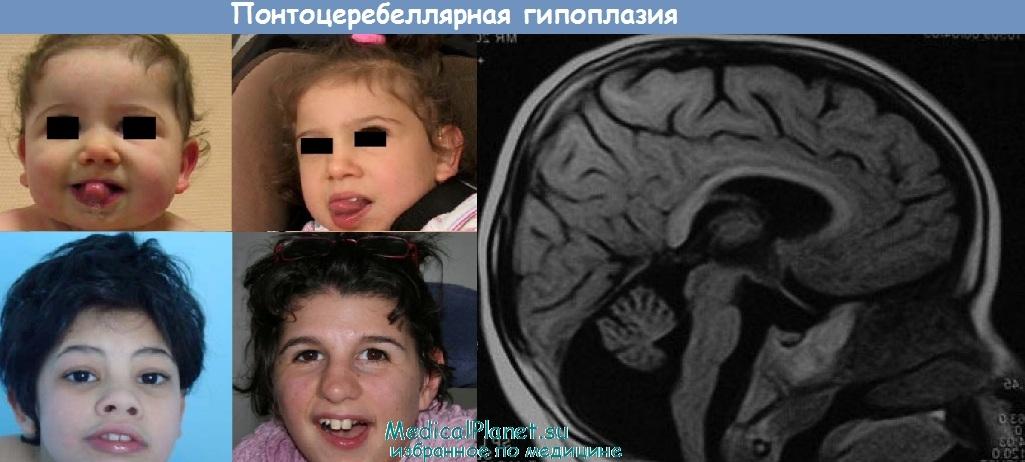 Понтоцеребеллярная гипоплазия