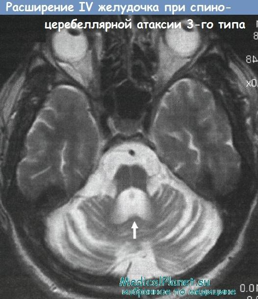 Спиноцеребеллярная атаксия (SCA3) - синдром Мачадо-Джозеф