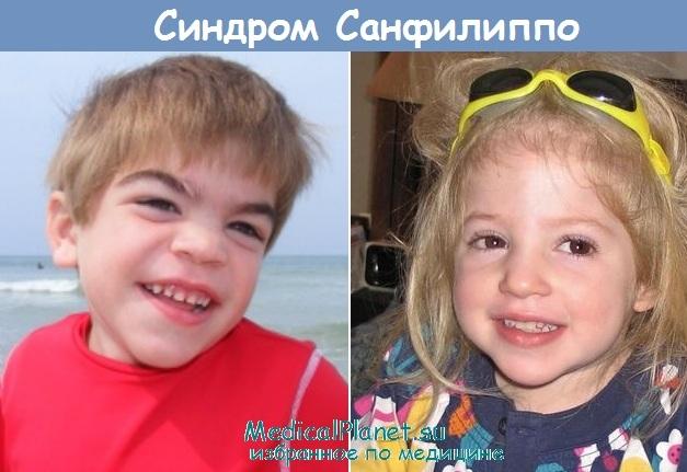 Синдром Санфилиппо