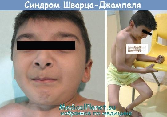 Синдром Шварца-Джампеля