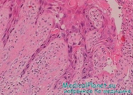 Рак вульвы прогноз 50