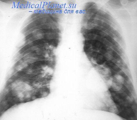 Стадии рака легких: от первой до четвертой