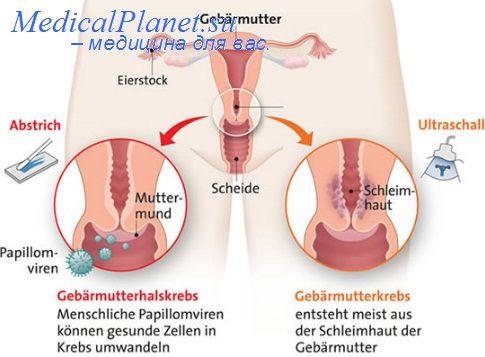 лечение 3 стадии рака шейки матки
