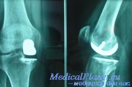 остеомиелит клиника