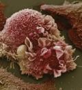 рак пищеварительного тракта