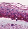 базальная мембрана опухоли