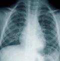 опухоли легких