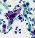 цервикальная интраэпителиальная неоплазия
