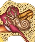 трансплантация слуховых косточек