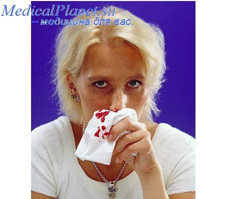 Острый фарингит представляет собой острое воспаление слизистой оболочки глотки...