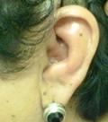 сифилис уха