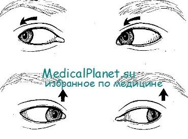 Схема нистагма при синдроме Меньера